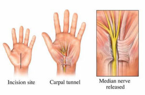 Carpel-Tunnel-Release